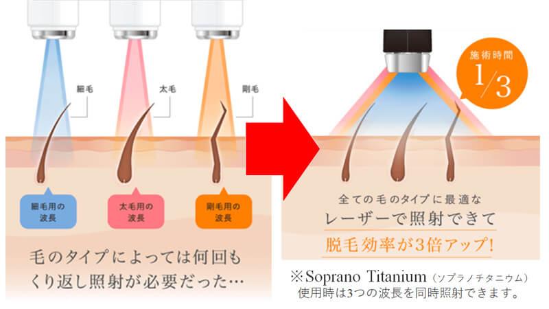 レーザー脱毛は毛の質によって変えた方がいいSoprano Titanium(ソプラノチタニウム)は3つのレーザーを同時に照射する画期的なマシン