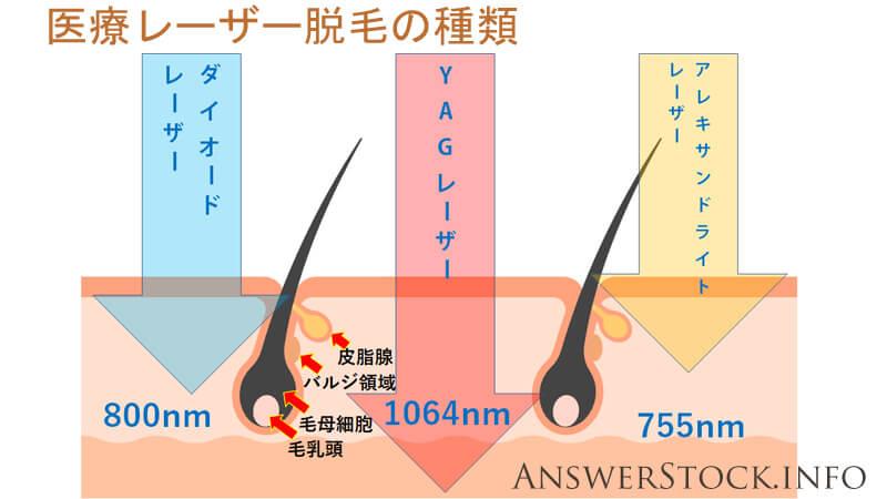 医療レーザー脱毛は3種類のレーザーがあります。アレキサンドライトレーザー、YAGレーザー、ダイオードレーザーです